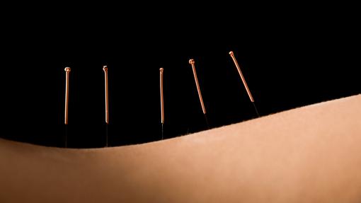 510x287_akupunktur3